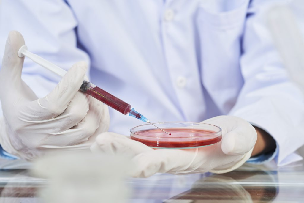 Laboratory worker filling Petri dish with red reagent